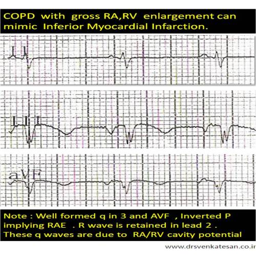 copd ra rv enlargement mimic inferior mi q waves in 2 3 avf differential diagnosis