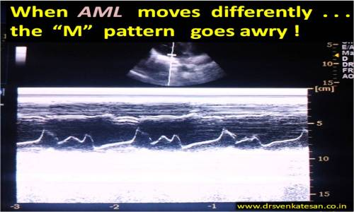 mitral valve motion trifid m pattern  in m mode echocardiography