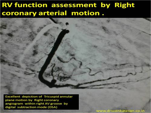 tapsee rca motion by coroanry angiogram rv systolic function tricuspid annulus motion right av groove atrio ventricular grrove mapsee m mode echo