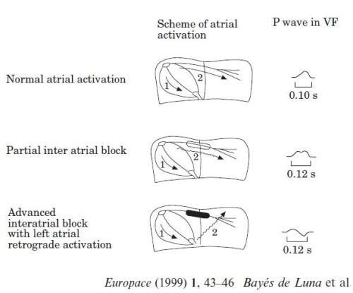 inter atrial block europace 1999 de luna