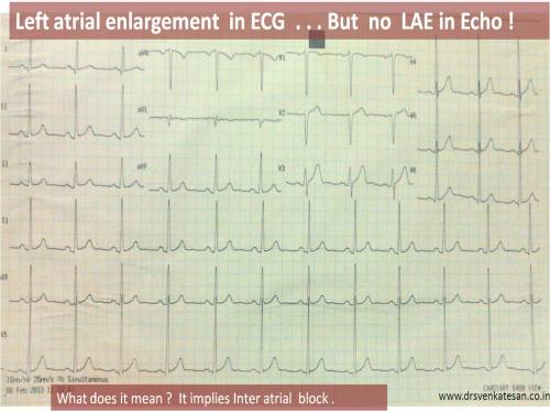 left atrial  enlargement by ecg limitations sensitivity