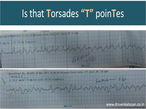 T waves alternans torades de pointes