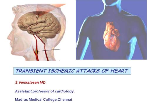 transient ischemic attacks attack of heart coronary tia
