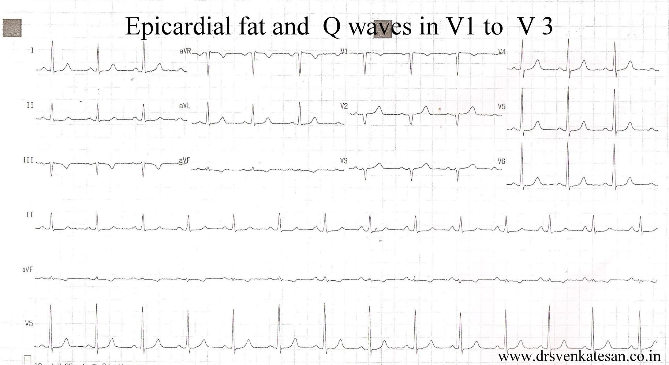 The QRS complex is also included in estimating the QT interval Q wave  Normal Q waves when present represent depolarization of the interventricular septum