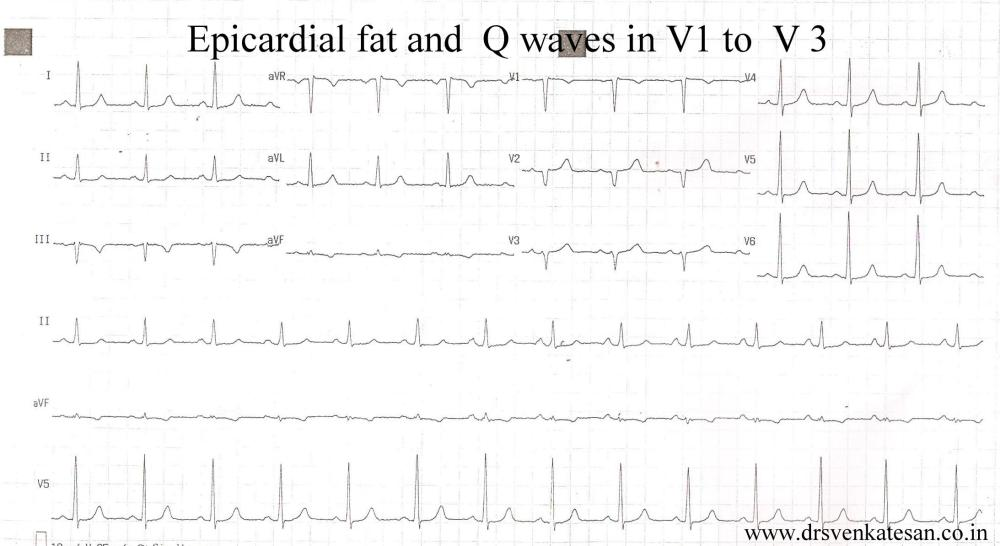When anterior epicardial fat  . . . generates  Q waves  . . .   diagnosis of ASMI gets busted ! (1/4)