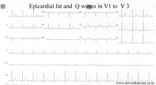 epicardial fat and poor r wave in v 1 v 2 v3 q  waves