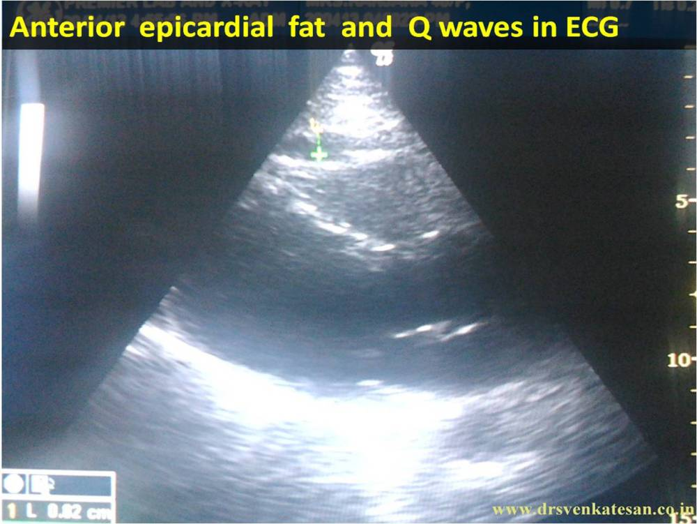 When anterior epicardial fat  . . . generates  Q waves  . . .   diagnosis of ASMI gets busted ! (2/4)