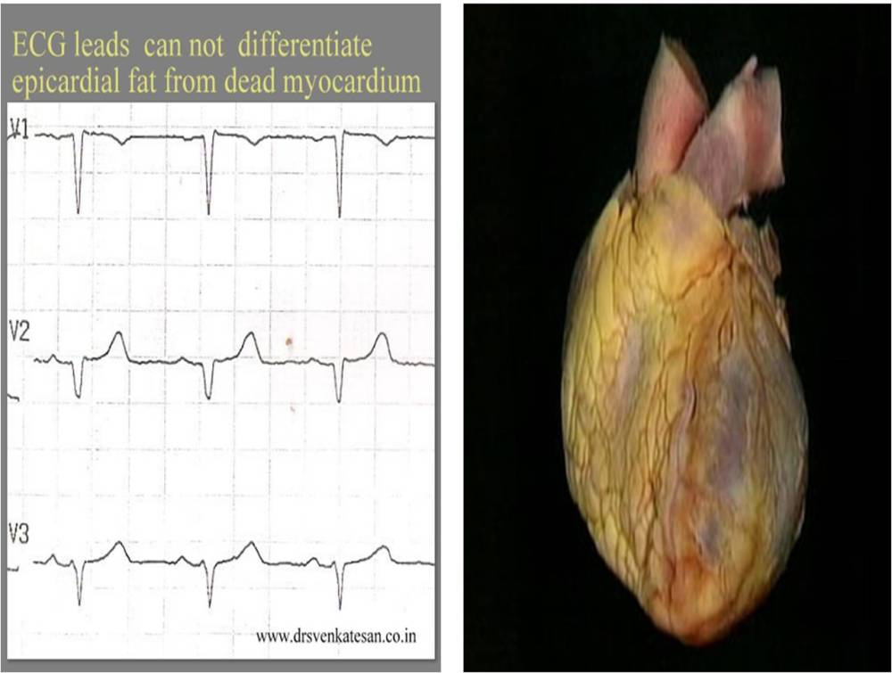 When anterior epicardial fat  . . . generates  Q waves  . . .   diagnosis of ASMI gets busted ! (3/4)