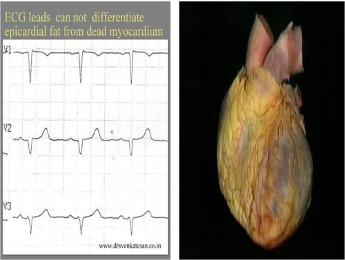 epicardial fat and q waves in ecg pesudo infarct non infarct fat 2  q