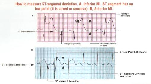 how to measure ST  elevation in STEMI 2