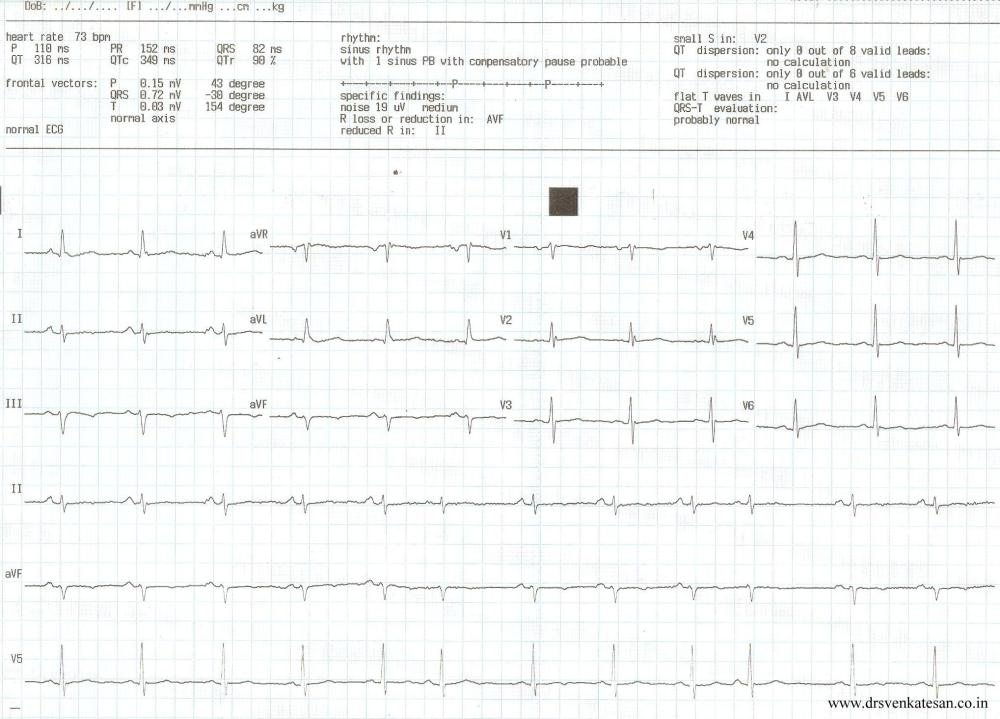 An unusual cardiac arrhythmia : This ectopic beat * arises right  from sinus node itself ! (1/3)