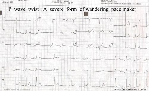 wandering pacemaker