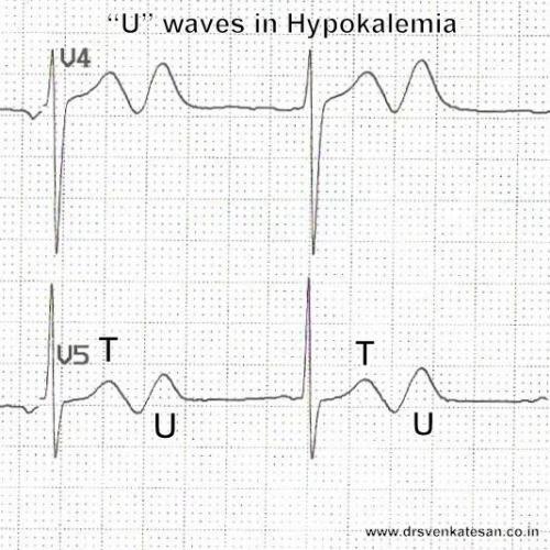 hypokalemia U wave ECG 2