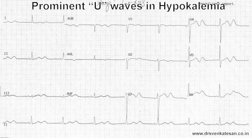 hypokalemia U wave ECG