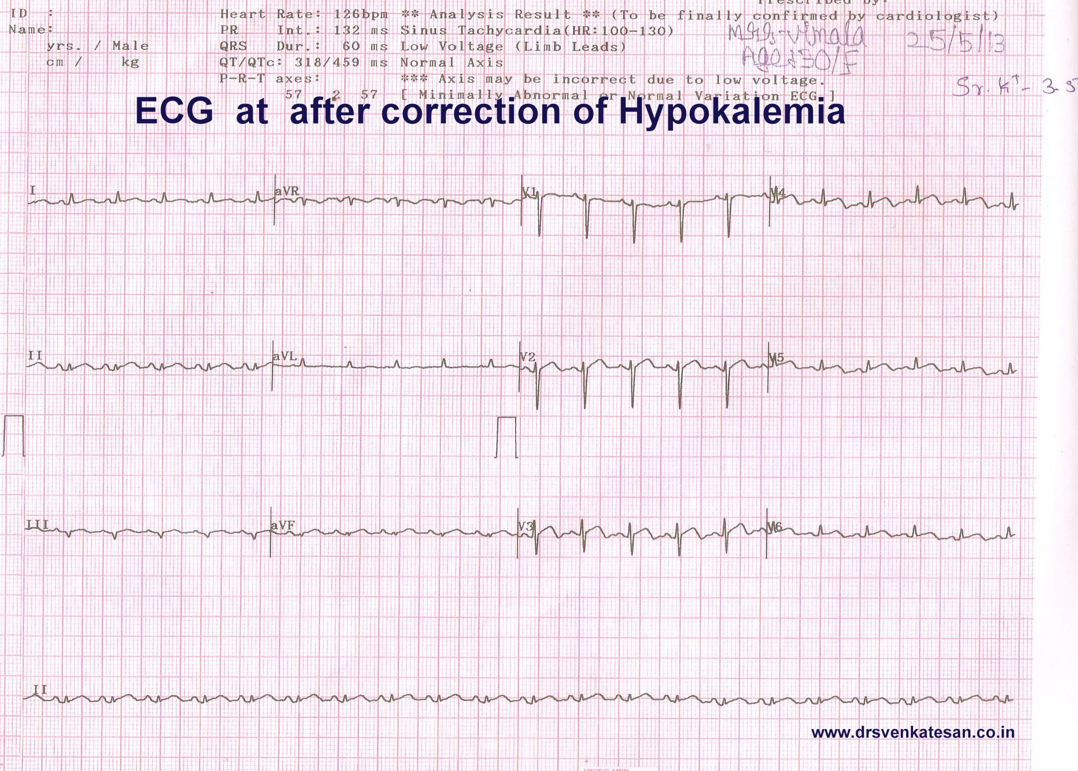 effect of hypokalemia on ecg | Dr.S.Venkatesan MD