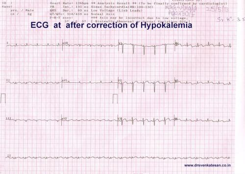 hypokalemia STEMI ECG changes 001
