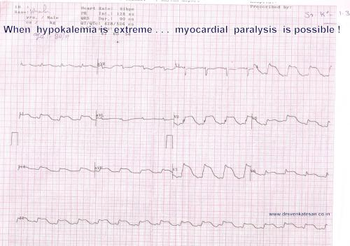 hypokalemia STEMI ECG changes