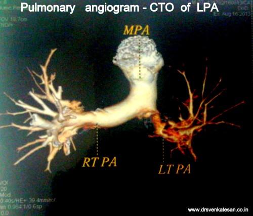 pulmonary embolism total occlusion of LPA