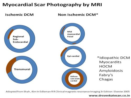 how to differentiate ischemic dcm from idiopathic dcm myocardial scar epicardial transmural