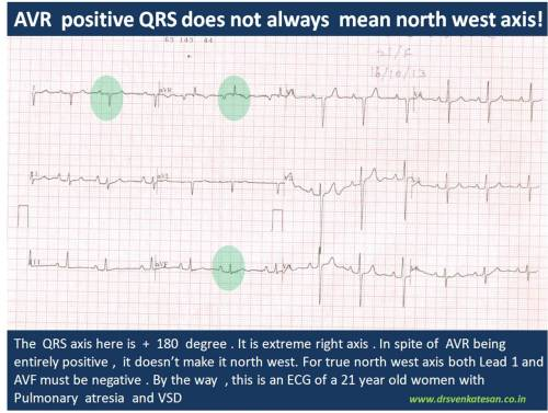 ecg qrs axis north west indeterminate