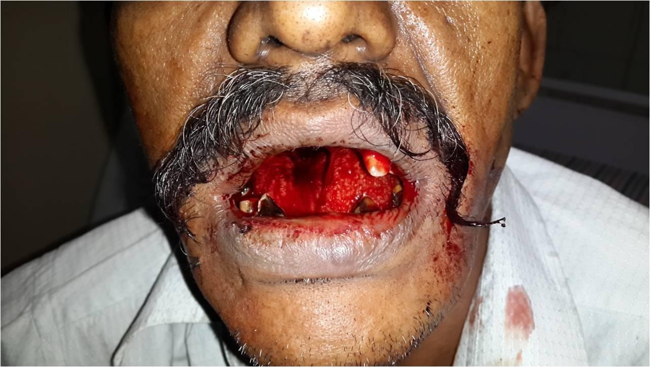 Strptokinase induced bleeding