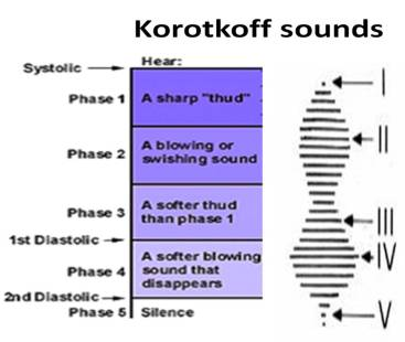 korrotkoff sounds