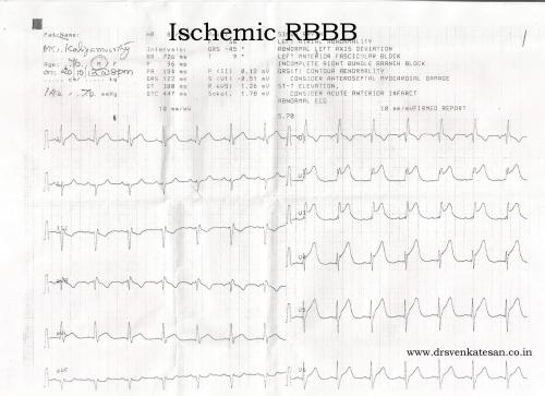 ischemic rbbb