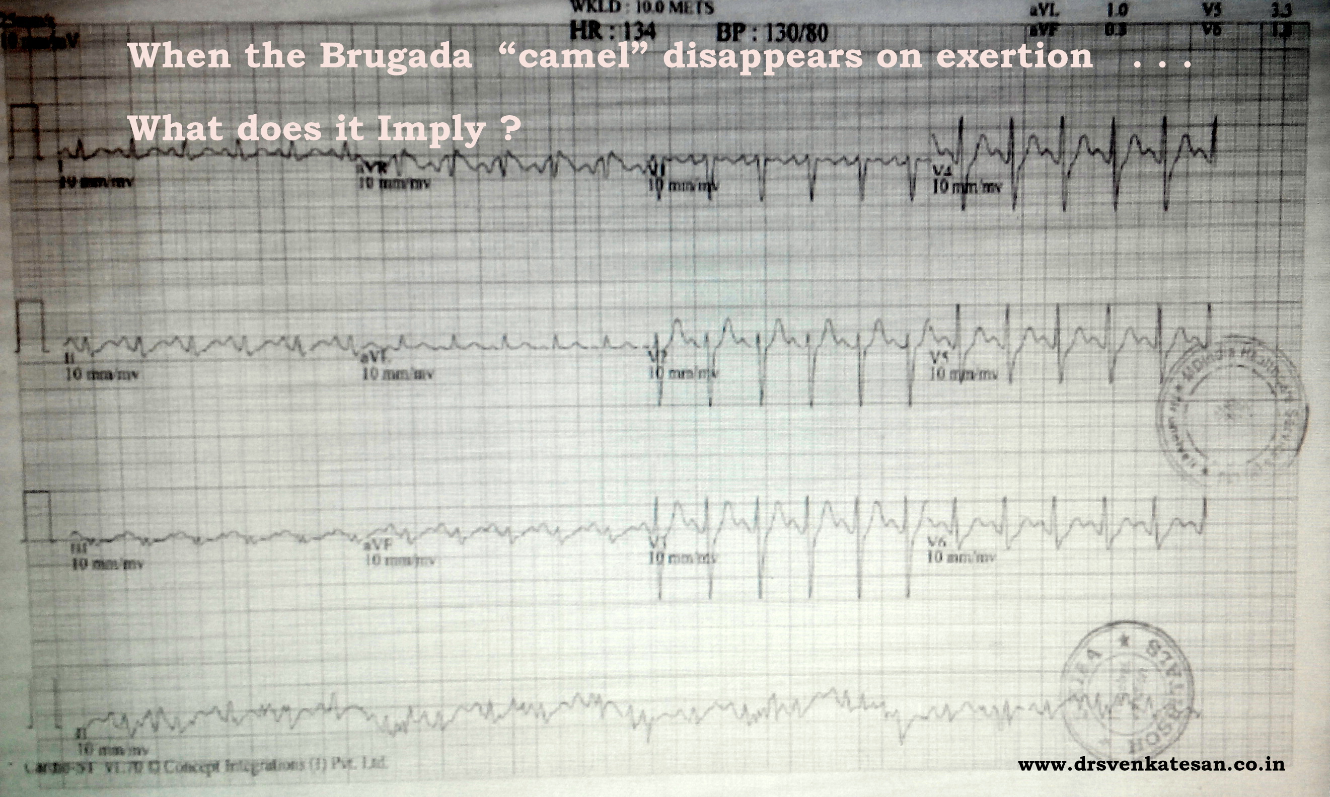 Brugada ecg camel on exertion