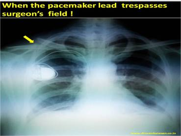 pacemaker lead clavicle fracture electro cautery surgery