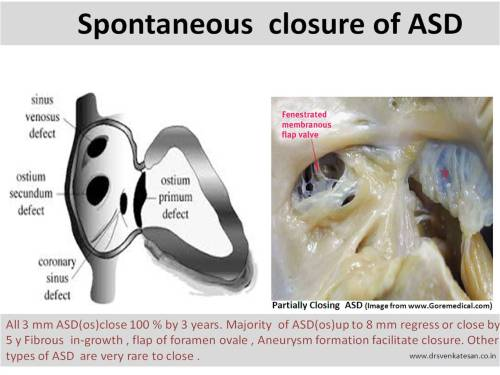 spontaneous closure of asd