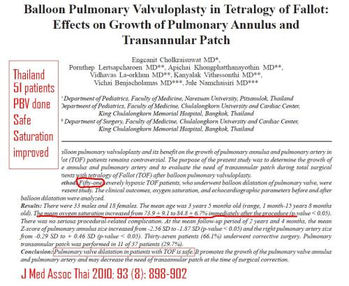 Balloon pulmonary valvotomy for tof tetrology of fallot