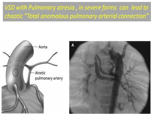pulmonary atresia vsd mapcas major aorto pulmonary collaterlal unifocalisation single multiple stage tapac