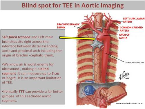 blind spot for tee in aortic imaging distal ascending aorta and proximal arch bracho cephalic trunk