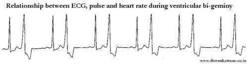 ecg pulse deficit biventricular bigeminy