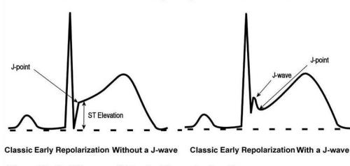 J wave and J point early repolarisation syndrome