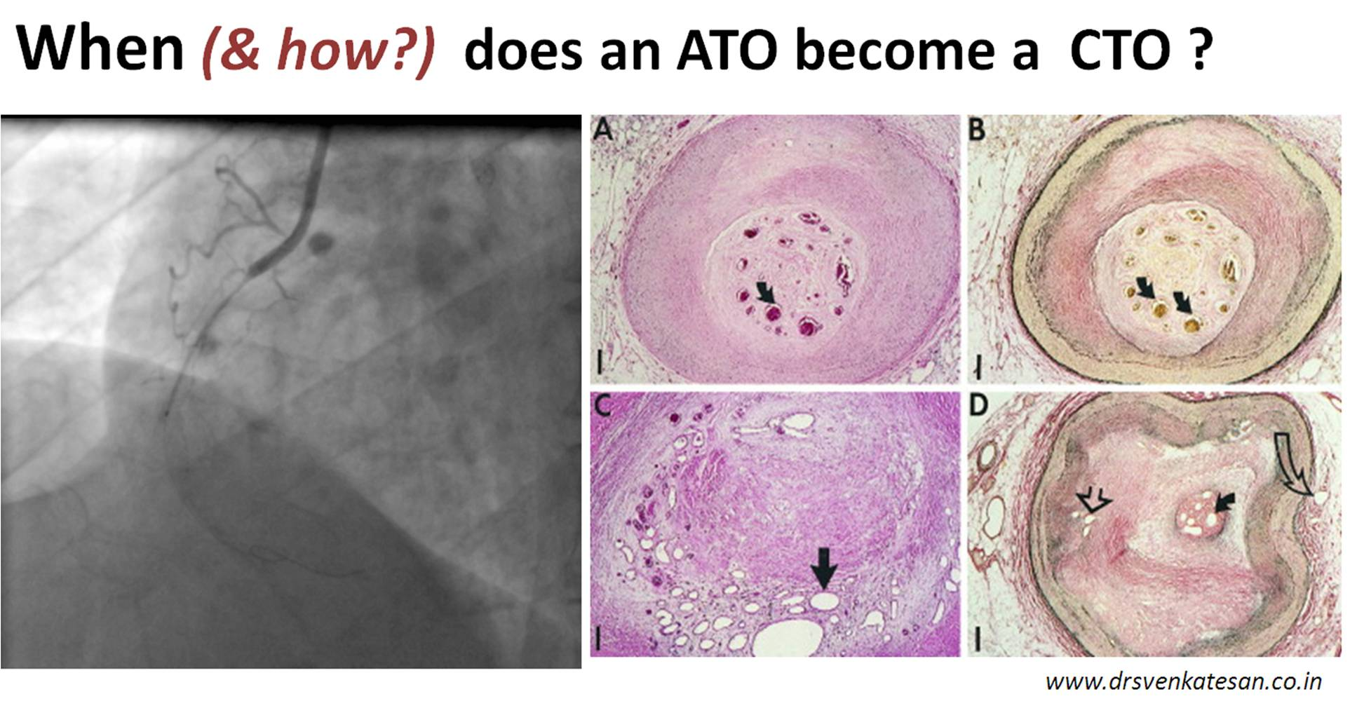 when does an ato become a cto following a stemi ? | dr.s.venkatesan md
