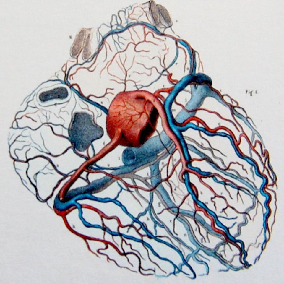 Coronary Sinus Drsnkatesan Md