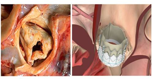 TAVI TAVR valve dislodgement embolism partent a b