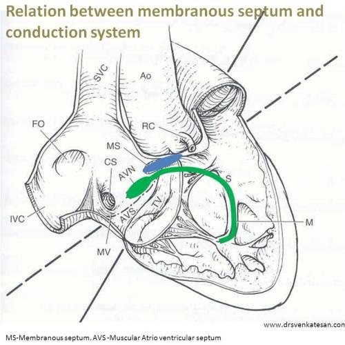 membranous ventricular septum 2