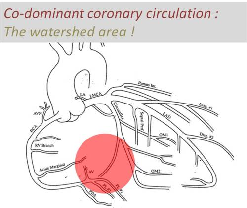 coronary codomiant circulation