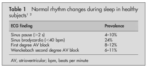 nocturnal pauses during sleep holter