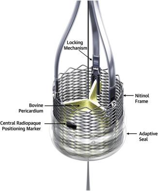 lotus valve tavr