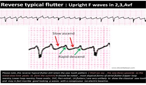 mechanism-of-flutter-wave-upright-or-inverted