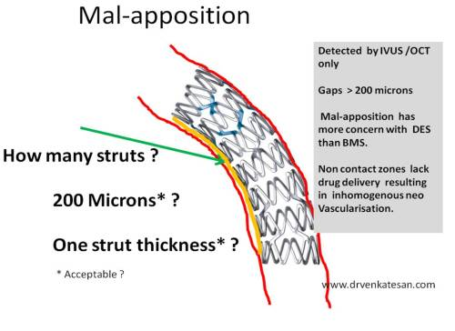 under-expanded-stent-vs-malapposition-post-dilatation-200-microns
