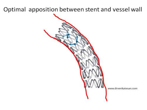 under-expanded-stent-vs-malapposition-post-dilatation