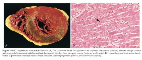 Reperfused myocardium